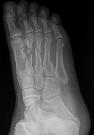 Name:  compressed broken foot.jpg Views: 36882 Size:  11.6 KB